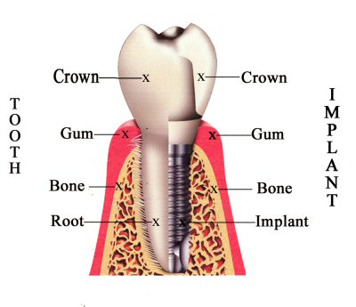 Dental implant Compared to tooth root