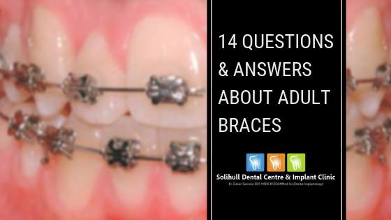 14 Questions & Answers About Adult braces