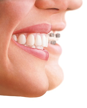 clear braces with Invisalign
