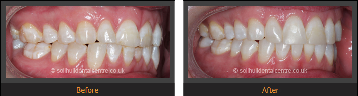 orthodontics before and after side view, right