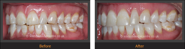 orthodontics before and after side view, left