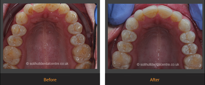 orthodontics before and after occlusal view upper
