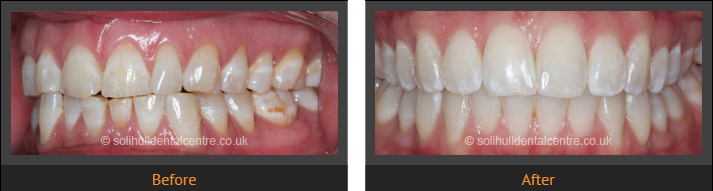 orthodontics before and after left