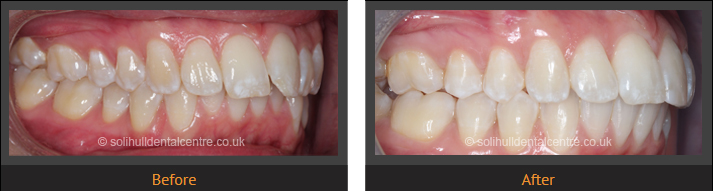 orthodontics before and after, right