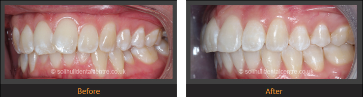 orthodontics before and after