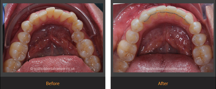 orthodontics before and after lower occlusal view
