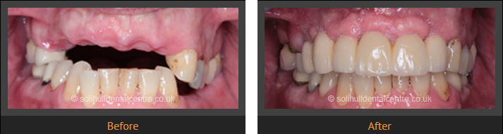 dental implants to replace the top front teeth, before and after