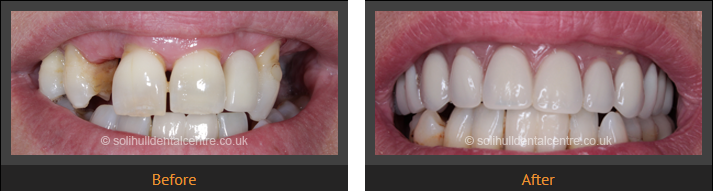 replacing the front teeth with dental implants