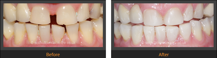 dental implant photographs
