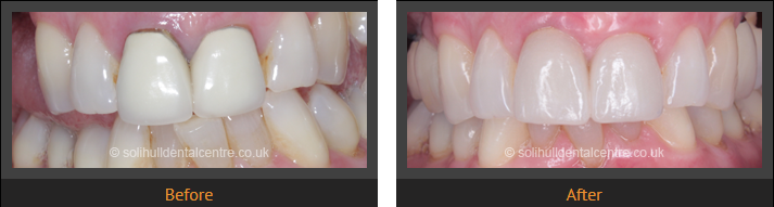dental implant cases